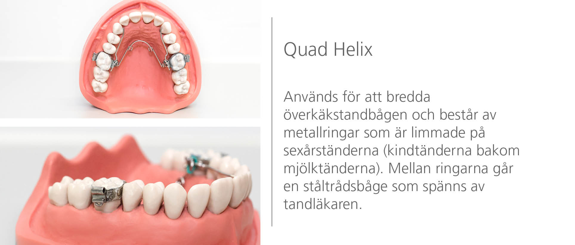 Orala tekniker