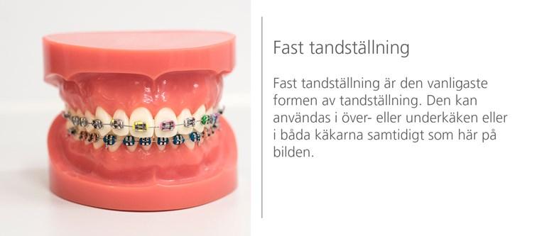 Fast tandställning - Folktandvården dec92693a89a9